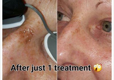 Before & after 1 treatment of laser pigmentation removal on nose