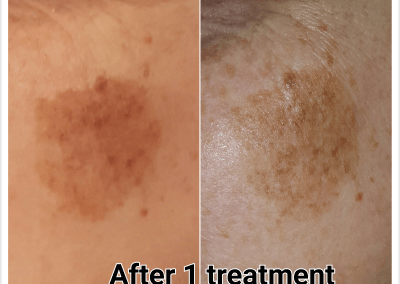 Before & after 1 treatment of laser pigmentation removal.