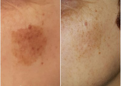 Before & after 2 treatments of laser pigmentation removal.