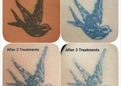Overall picture after 3 treatments of Laser Tattoo Removal.