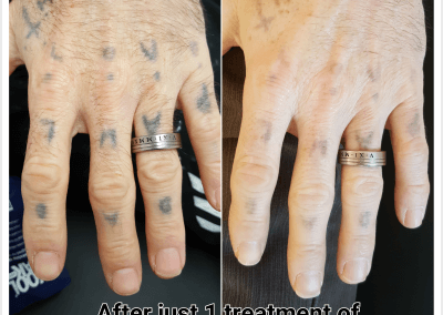 Before & after 1 treatment of Laser Tattoo Removal (1)