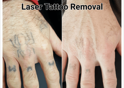 Before & after 1 treatment of Laser Tattoo Removal.
