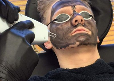 Charcoal Carbon Laser Facial treatment in action.