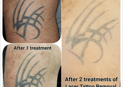 Overall picture after 2 treatments of Laser Tattoo Removal