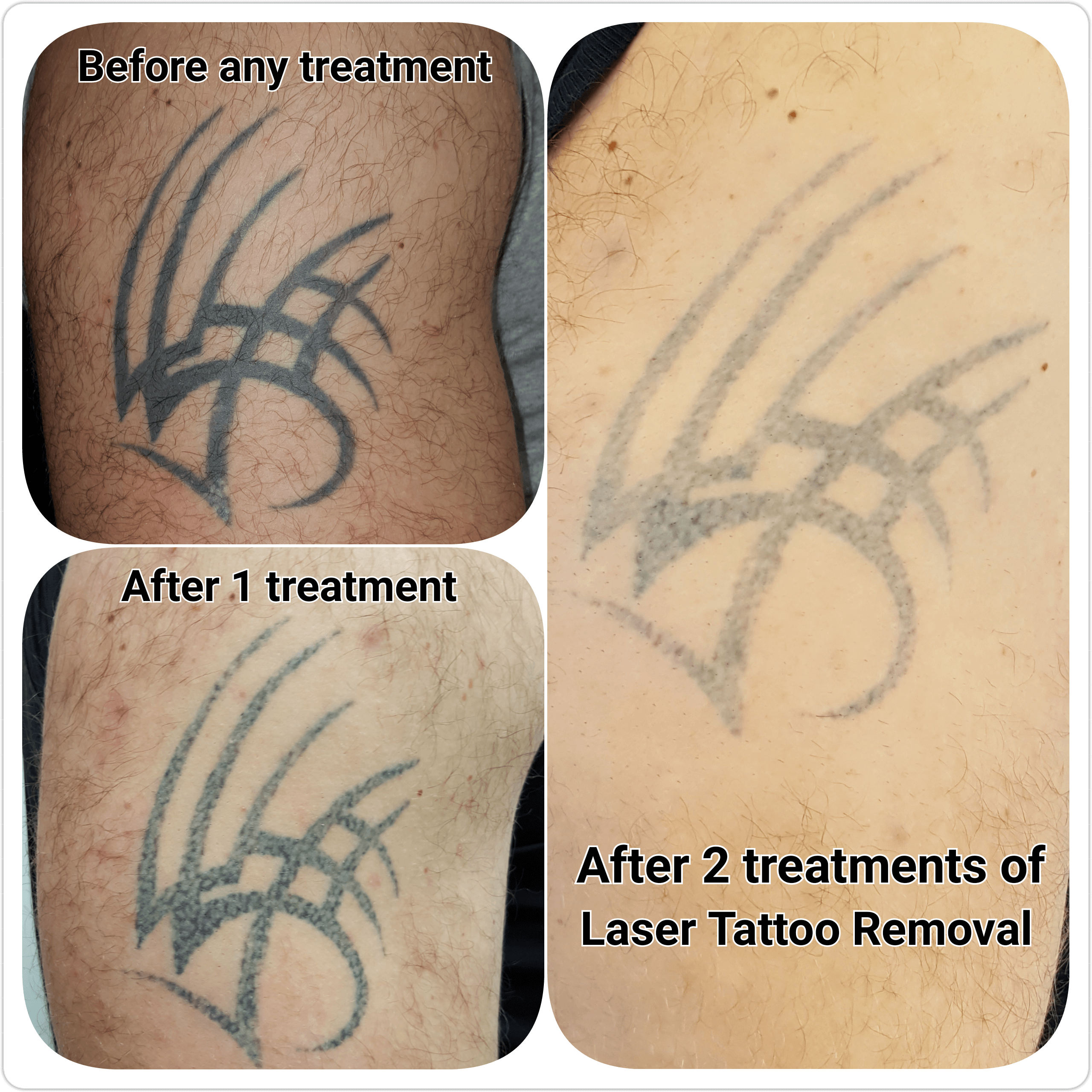 Gallery c h laser treatments tattoo removal gloucester for Tattoo removal lasers